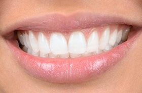 Closeup of flawless teeth and gums